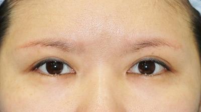 新宿ラクル美容外科クリニック 山本厚志 眉下切開法 手術後2ケ月目 6月15日