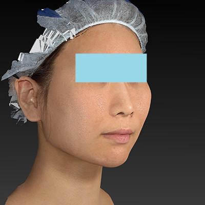 新宿ラクル美容外科クリニック 山本厚志 「ミントリフトⅡminiS flex(シークレットリフト)」 手術後1ヶ月目 6月20日