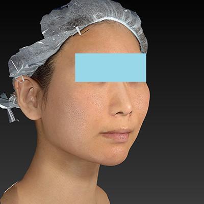 新宿ラクル美容外科クリニック 山本厚志 「ミントリフトⅡminiS flex(シークレットリフト)」 手術後2ヶ月目 7月18日