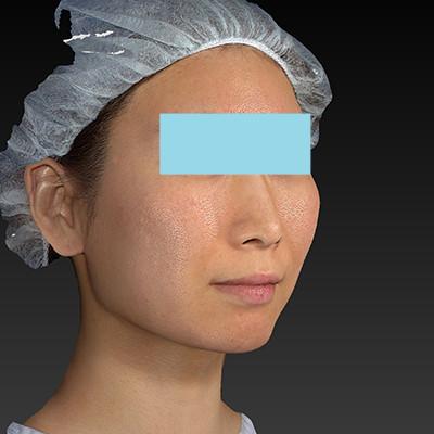 新宿ラクル美容外科クリニック 山本厚志 「ミントリフトⅡminiS flex(シークレットリフト)」 手術前 6月20日