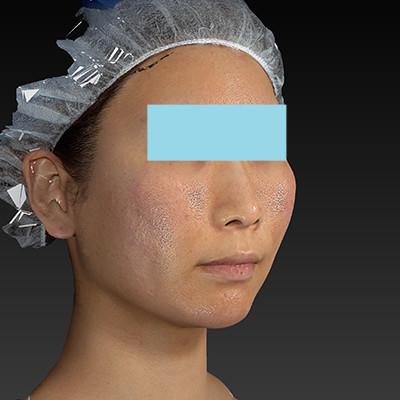 新宿ラクル美容外科クリニック 山本厚志 「ミントリフトⅡminiS flex(シークレットリフト)」 手術直後 6月20日