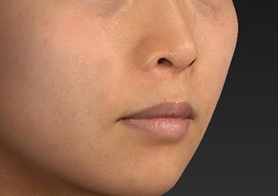 新宿ラクル美容外科クリニック 山本厚志 「人中短縮術(リップリフト)」 手術前 6月26日