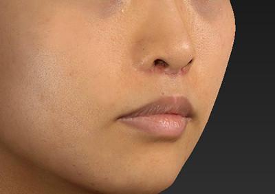 新宿ラクル美容外科クリニック 山本厚志 「人中短縮術(リップリフト)」 手術後1ヶ月目 6月26日