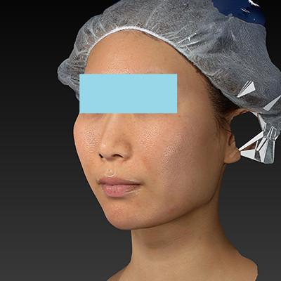 新宿ラクル美容外科クリニック 山本厚志 「ミントリフトⅡminiS flex(シークレットリフト)」 手術後1週間目 6月20日