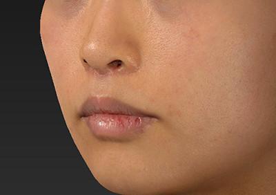 新宿ラクル美容外科クリニック 山本厚志 「人中短縮術(リップリフト)」 手術後2ヶ月目 7月12日