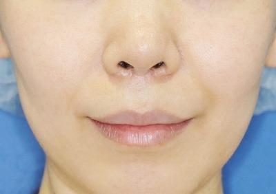新宿ラクル美容外科クリニック 山本厚志 「人中短縮術(リップリフト)」 手術後6ヶ月目 9月22日