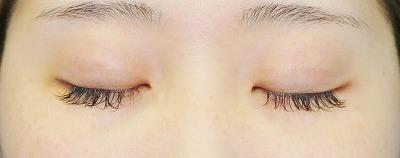 新宿ラクル美容外科クリニック 山本厚志 埋没法二重術(エクセレントアイ) 手術後1週間目 6月30日