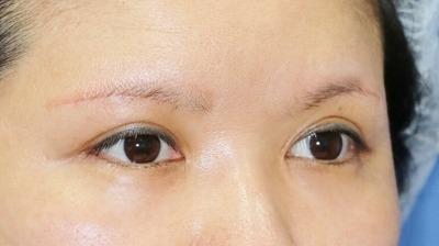 新宿ラクル美容外科クリニック 山本厚志 眉下切開法 手術後3ケ月目 7月1日