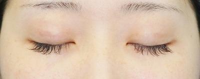 新宿ラクル美容外科クリニック 山本厚志 埋没法二重術(エクセレントアイ) 手術後1ヶ月目 7月13日