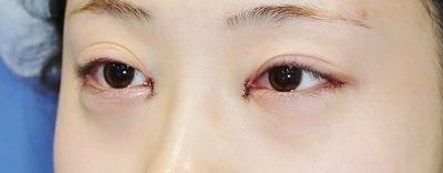 新宿ラクル美容外科クリニック 山本厚志 「目頭切開+目尻切開」 手術直後 6月4日