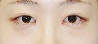 新宿ラクル美容外科クリニック 山本厚志 「目頭切開+目尻切開」 手術後1週間目 6月4日