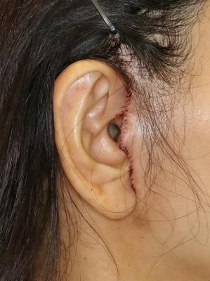 新宿ラクル美容外科クリニック 山本厚志 ナチュラルフェイスリフト 耳の傷痕 手術直後 6月28日