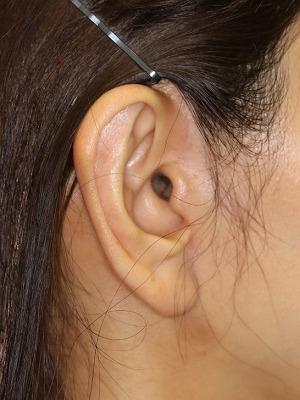新宿ラクル美容外科クリニック 山本厚志 ナチュラルフェイスリフト 耳の傷痕 手術後3ヶ月目 6月28日