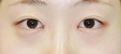 新宿ラクル美容外科クリニック 山本厚志 「目頭切開+目尻切開」 手術後1ヶ月目 6月4日