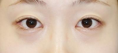新宿ラクル美容外科クリニック 山本厚志 「目頭切開+目尻切開」 手術後2ヶ月目 7月5日