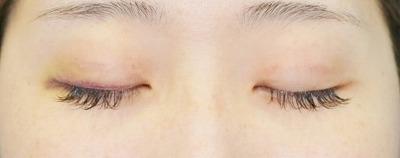 新宿ラクル美容外科クリニック 山本厚志 埋没法二重術(エクセレントアイ) 手術後3日目 6月23日