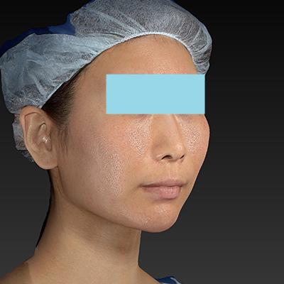 新宿ラクル美容外科クリニック 山本厚志 「ミントリフトⅡminiS flex(シークレットリフト)」 手術後3ヶ月目 11月23日