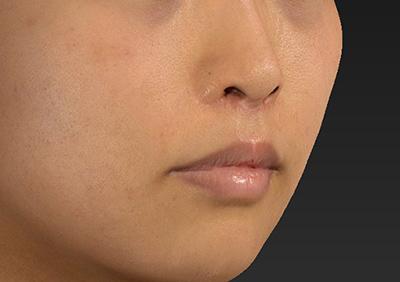 新宿ラクル美容外科クリニック 山本厚志 「人中短縮術(リップリフト)」 手術後3ヶ月目 8月6日
