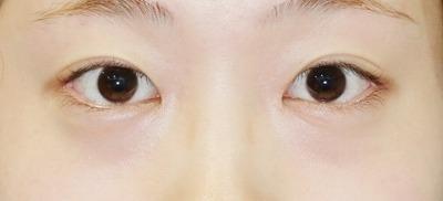 新宿ラクル美容外科クリニック 山本厚志 「目頭切開+目尻切開」 手術後3ヶ月目 8月19日