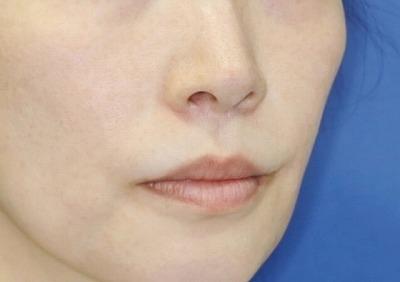 新宿ラクル美容外科クリニック 山本厚志 「人中短縮術(リップリフト)」 手術後6ヶ月目 10月1日