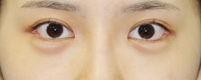 新宿ラクル美容外科クリニック 山本厚志 目尻切開+下眼瞼下制術 手術後1ヶ月目 7月21日