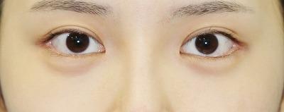 新宿ラクル美容外科クリニック 山本厚志 目尻切開+下眼瞼下制術 手術後2ヶ月目 8月10日