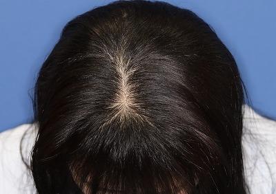 新宿ラクル美容外科クリニック 山本厚志 「DR.CYJ ヘアーフィラー」 4回目の治療後2週間目 7月30日