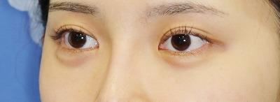 新宿ラクル美容外科クリニック 山本厚志 目尻切開+下眼瞼下制術 手術前 7月21日