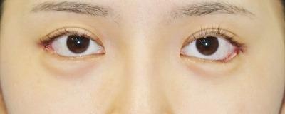 新宿ラクル美容外科クリニック 山本厚志 目尻切開+下眼瞼下制術 手術直後 7月21日