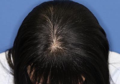 新宿ラクル美容外科クリニック 山本厚志 「DR.CYJ ヘアーフィラー」 5回目の治療後2週間目 9月21日