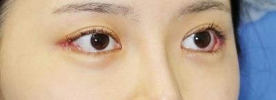 新宿ラクル美容外科クリニック 山本厚志 目尻切開+下眼瞼下制術 手術後1週間目 7月21日
