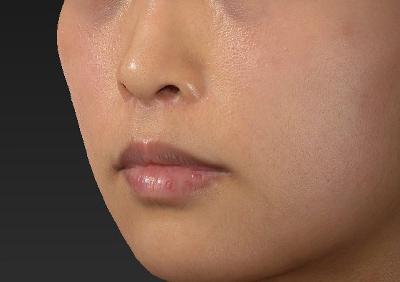 新宿ラクル美容外科クリニック 山本厚志 「人中短縮術(リップリフト)」 手術後6ヶ月目 11月6日