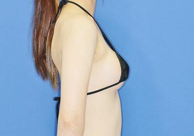 新宿ラクル美容外科クリニック 山本厚志 「Motiva(モティバ)エルゴノミクス」 手術後2ヶ月目 9月25日
