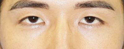 新宿ラクル美容外科クリニック 山本厚志 埋没法二重術(エクセレントアイ) 手術前 8月2日