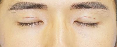 新宿ラクル美容外科クリニック 山本厚志 埋没法二重術(エクセレントアイ) 手術直後 8月2日