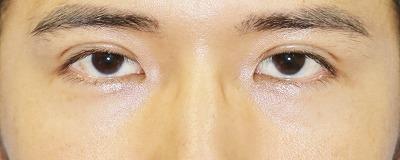 新宿ラクル美容外科クリニック 山本厚志 埋没法二重術(エクセレントアイ) 手術後3日目 8月2日