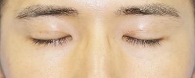 新宿ラクル美容外科クリニック 山本厚志 埋没法二重術(エクセレントアイ) 手術後1週間目 8月2日