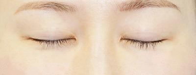新宿ラクル美容外科クリニック 山本厚志 「全切開二重術+上まぶたの脂肪取り+眼瞼下垂(挙筋腱膜前転法)」 手術前 8月17日