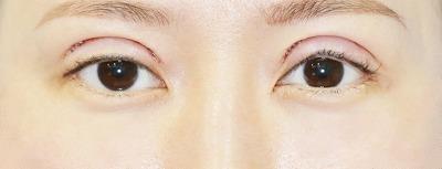 新宿ラクル美容外科クリニック 山本厚志 「全切開二重術+上まぶたの脂肪取り+眼瞼下垂(挙筋腱膜前転法)」 手術直後 8月17日
