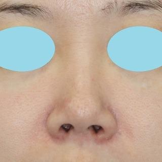 新宿ラクル美容外科クリニック 山本厚志 「Gメッシュ(G-Mesh )」 「 n-COG Y-ko(ワイコ)」 手術前 8月21日
