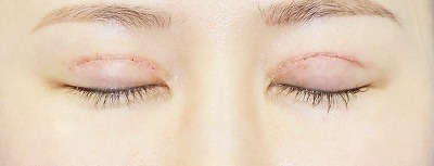 新宿ラクル美容外科クリニック 山本厚志 「全切開二重術+上まぶたの脂肪取り+眼瞼下垂(挙筋腱膜前転法)」 手術後1週間目 8月17日