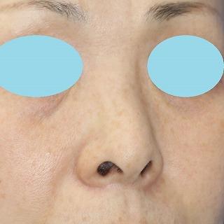 新宿ラクル美容外科クリニック 山本厚志 「小鼻縮小+α法 + 鼻プロテーゼ隆鼻術」 手術前 8月13日