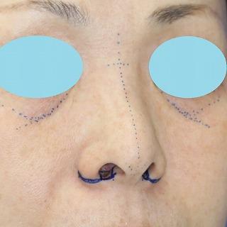 新宿ラクル美容外科クリニック 山本厚志 「小鼻縮小+α法 + 鼻プロテーゼ隆鼻術」 デザイン 8月13日