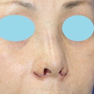 新宿ラクル美容外科クリニック 山本厚志 「小鼻縮小+α法 + 鼻プロテーゼ隆鼻術」 手術直後 8月13日