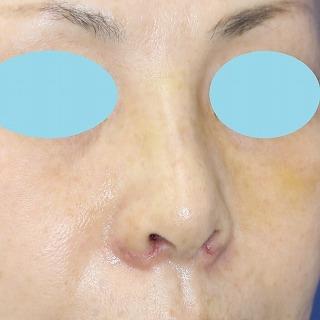 新宿ラクル美容外科クリニック 山本厚志 「小鼻縮小+α法 + 鼻プロテーゼ隆鼻術」 手術後1週間目 8月13日