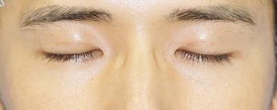 新宿ラクル美容外科クリニック 山本厚志 埋没法二重術(エクセレントアイ) 手術後1ヶ月目 8月24日