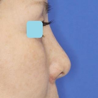新宿ラクル美容外科クリニック 山本厚志 「小鼻縮小+α法 + 鼻プロテーゼ隆鼻術」 手術後1ヶ月目 8月28日
