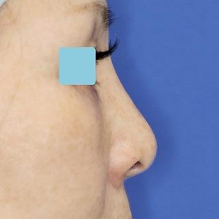 新宿ラクル美容外科クリニック 山本厚志 「小鼻縮小+α法 + 鼻プロテーゼ隆鼻術」 手術後3ヶ月目 12月3日