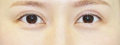 新宿ラクル美容外科クリニック 山本厚志 「全切開二重術+上まぶたの脂肪取り+眼瞼下垂(挙筋腱膜前転法)」 手術後1ヶ月目 9月10日
