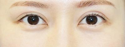 新宿ラクル美容外科クリニック 山本厚志 「全切開二重術+上まぶたの脂肪取り+眼瞼下垂(挙筋腱膜前転法)」 手術後2ヶ月目 10月16日